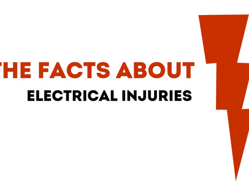 The Facts: Electrical Injuries