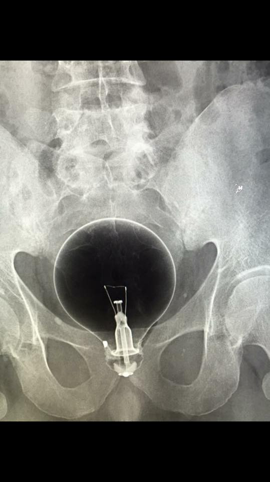 xray of a lightbulb in rectum
