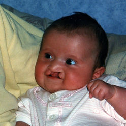 Born with a cleft lip and palate, the image shows Beth before her cleft repair surgery