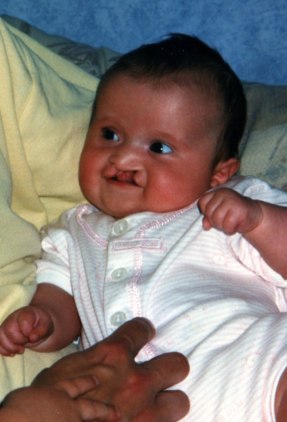 cleft lip and palate baby, real cleft lip and palate patient story and psychology