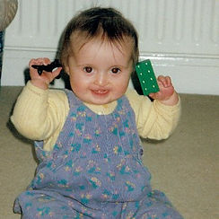 Born with a cleft lip and palate, the image shows Beth at two years old
