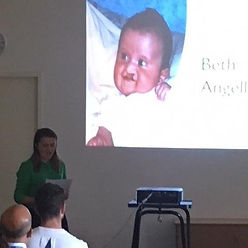 Born with a cleft lip and palate, the image shows Beth speaking at Addenbrooke's Hospital for the Cleft Net East team
