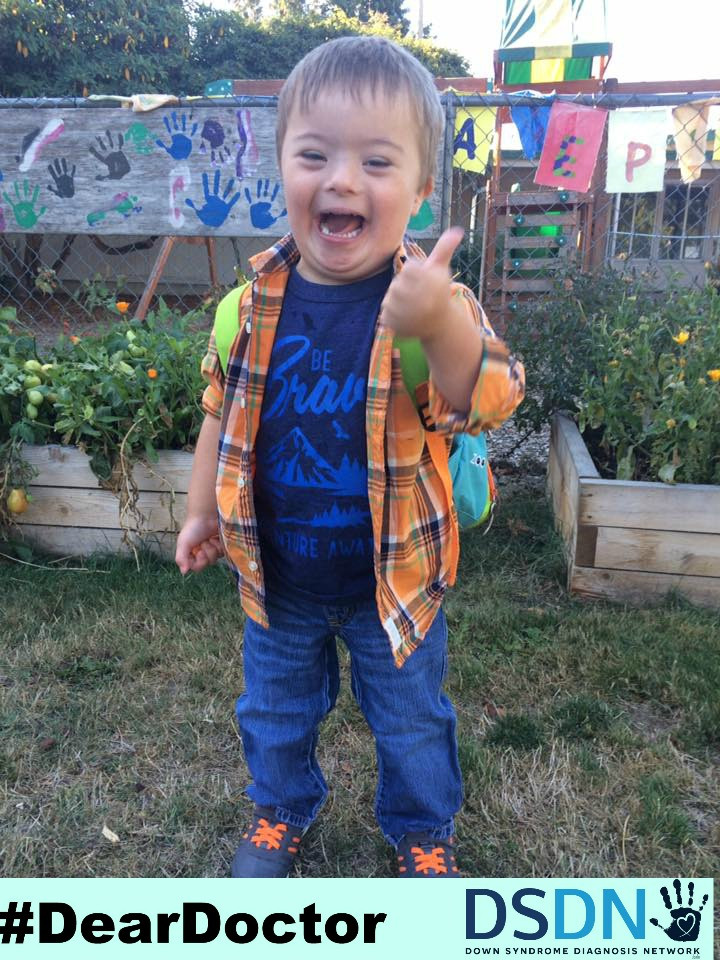 down syndrome cute toddler