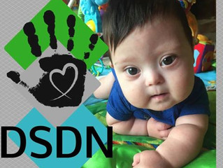 """Bring DSDN Home: """"The 21st chromosome may be the smallest, but in my experience it can also cre"""