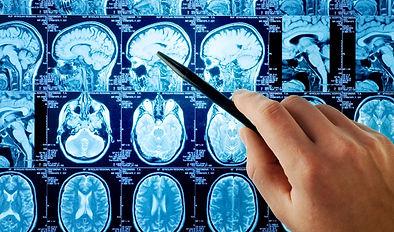 Neurochirurgie 11.jpg
