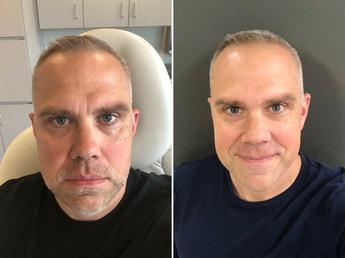 preview-full-BotoxBeforeandAfter.png