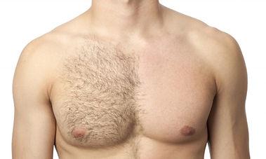 men laser treatment.jpg