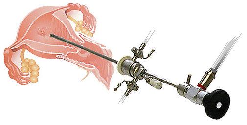 histeroskopi ile rahim içi yapışıklıkların giderilmesi