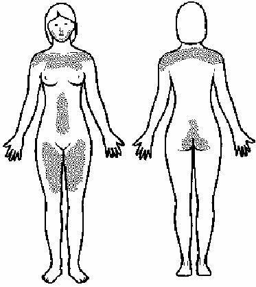 polikistik overli kadınlarda erkek tipi tüylenme vücudun çeşitli yerlerinde ortaya çıkabilir.