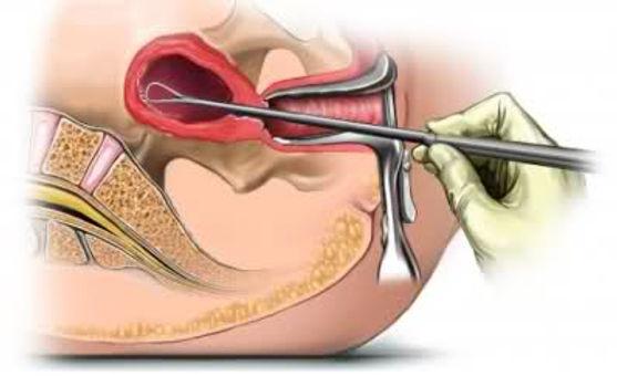 rahim içinden patolojik inceleme yapmak ve kanamayı durdurmak amacıyla parça alınması (kürtaj).