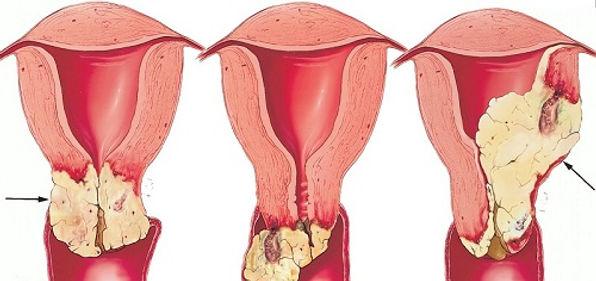 rahim ağzı (serviks) kanseri ileri evreler