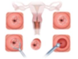 leep konizasyon ile rhim ağzındaki kanser öncüsü lezyonlar çıkarılır.
