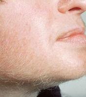 kadında erkek tipi tüyleme, yüz ve çenede sakal çıkması plikistik overde sıktır.