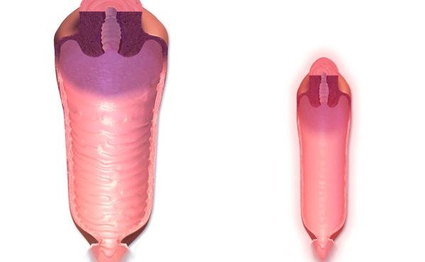 menopoz döneminde özellikle vajinada atrofi oluşur