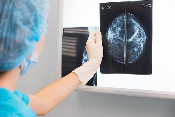 mamografi ve meme ultrasonu radyoloji uzmanı tarafından yapılır ve raporlanır