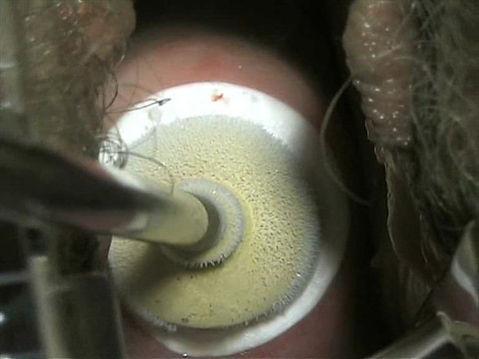 rahim ağzı kriyoterapi yapılırken bu şekilde görünür.