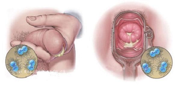 erkekte üretradan akıntı ve kadında rahim ağzı enfeksiyonu