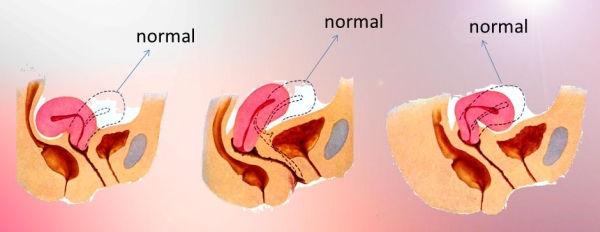 rahimin arkaya dönük (ters) olması bir hastalık değildir.