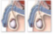 vazektomi (erkeğin kısırlaştırılması)