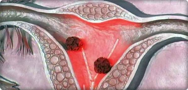 rahim iç tabaksı (endometrium) kanseri