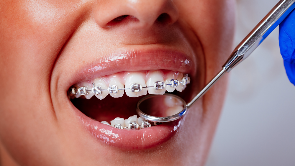 Braces are eligible for a dental grant