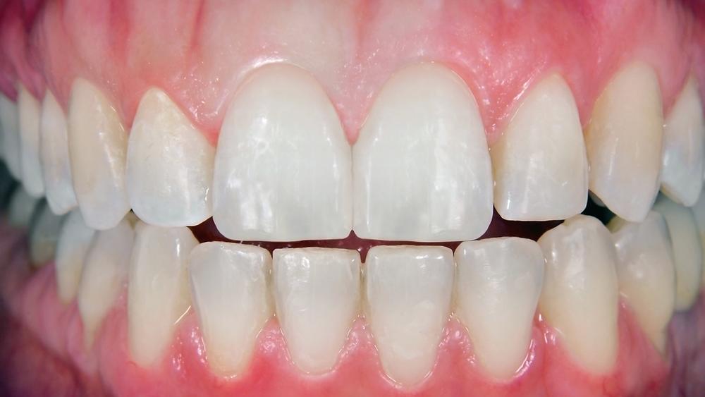 Before and After Veneers - Dental Grants Procedures