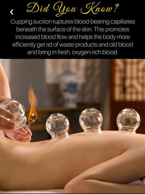 Cupping Theraphy
