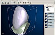 cadcam- imperial implant dentistry.
