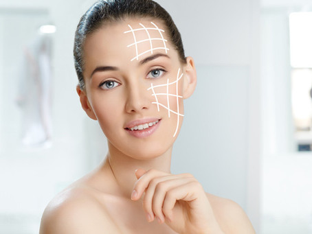 8 Surprising Uses for Botox