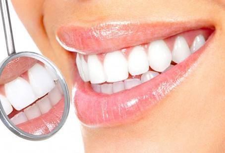 10 Motivos para você fazer Implante Dentário