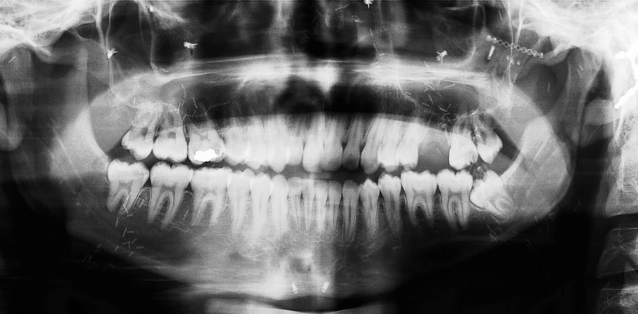 Cranial X-rays (Dental Radiographs and C