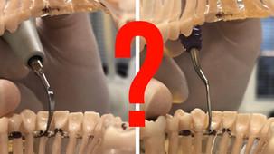 Slečno hygienistko, ultrazvukem nebo ručně?