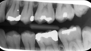 RTG vyšetření u zubního lékaře