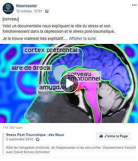 cerveau SPT.PNG