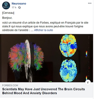 cerveau anxiete.PNG