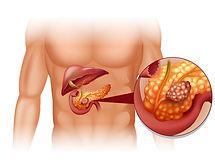 cancer-pancreas-les-signes-qui-doivent-a