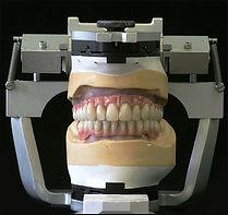 implant 6.jpg