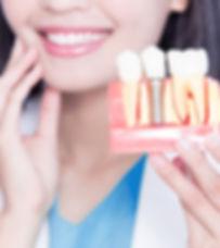 Zahnarzt-Oralchirurg-Versmold-eicker-roh