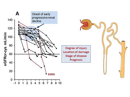 Biomarkers in Renal Disease- 1.png
