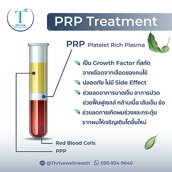 PRP-05.jpg