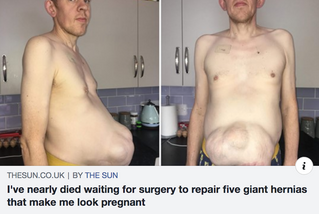 OVERDUE DAD: 'I've waited TWO YEARS to have hernias repaired that make me look PREGNANT and give me