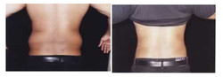 Liposuction of Abdomen/Hips