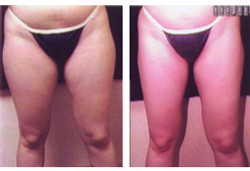 Liposuction of the Thighs