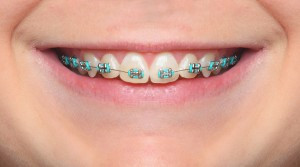 SURESMILE OR TRADITIONAL BRACES?