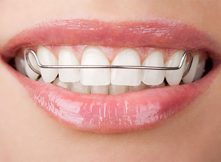 TIPS FOR TAKING CARE OF YOUR FIXED RETAINER