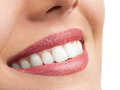 TIPS TO AVOID WHITE SPOTS ON YOUR TEETH AFTER BRACES