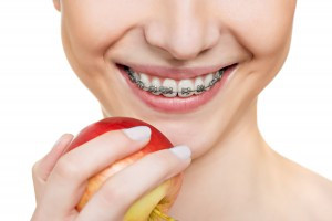 ADULT ORTHODONTICS – BRACES WITHOUT THE EMBARRASSMENT TO SMILE!