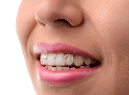 STRAIGHT TEETH WITHOUT EMBARRASSING BRACES