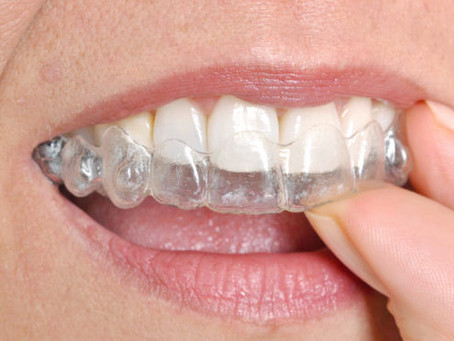 HEALTHY GUMS AND INVISALIGN