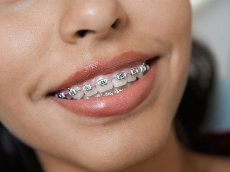 ORTHODONTICS, SO MUCH MORE THAN JUST STRAIGHTENING TEETH